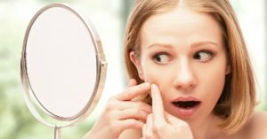 How to Control Acne Naturally